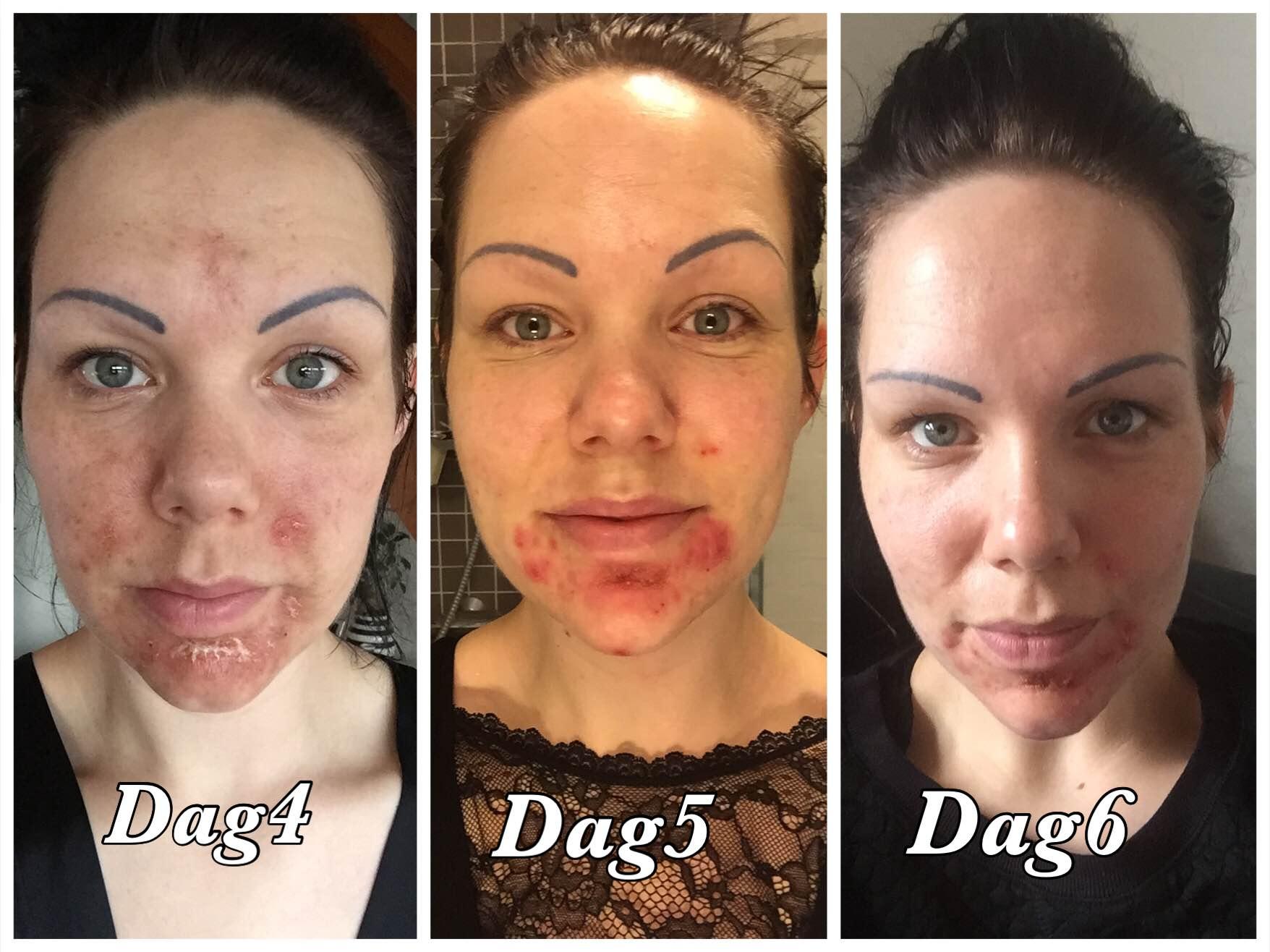 ekstrem tør hud i ansigtet