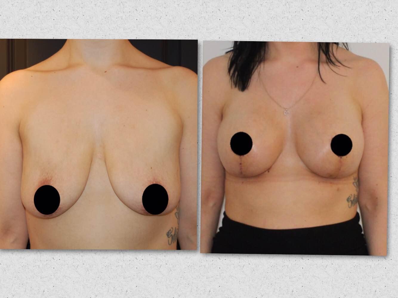 silikone bryster før og efter